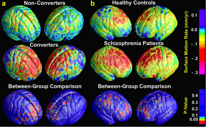 Schizophrenia – A Perceptual Distortion