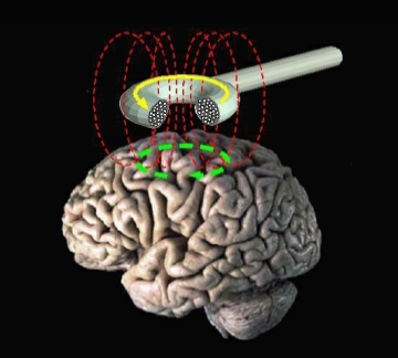 TMS http://commons.wikimedia.org/wiki/File:Transcranial_magnetic_stimulation.jpg Public Domain
