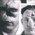 Facial Reconstruction During WW1: Skin Grafting